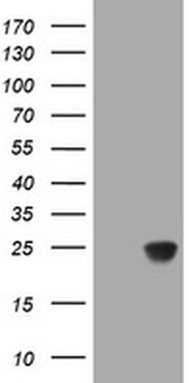 RHOJ Mouse anti-Human, Clone: OTI2C11, liquid, TrueMAB  100 µL; Unconjugated