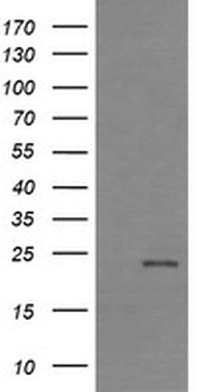 RHOJ Mouse anti-Human, Clone: OTI2C10, liquid, TrueMAB  30 µL; Unconjugated