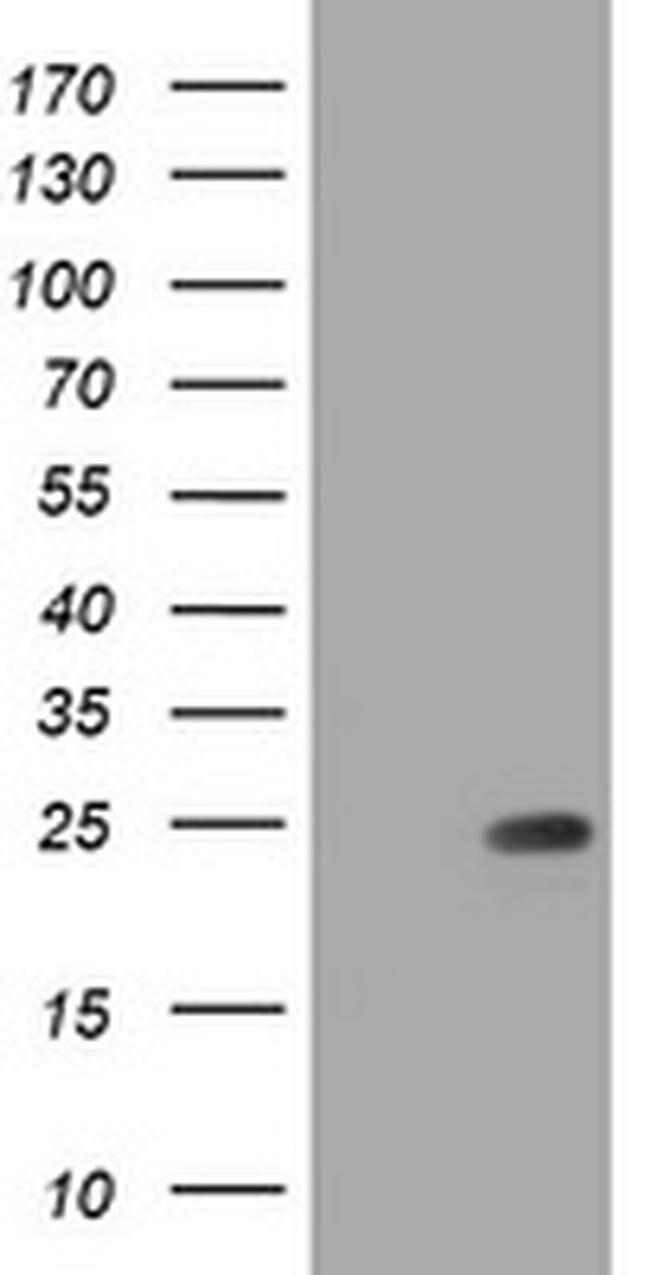 RHOJ Mouse anti-Human, Clone: OTI1A9, liquid, TrueMAB  100 µL; Unconjugated