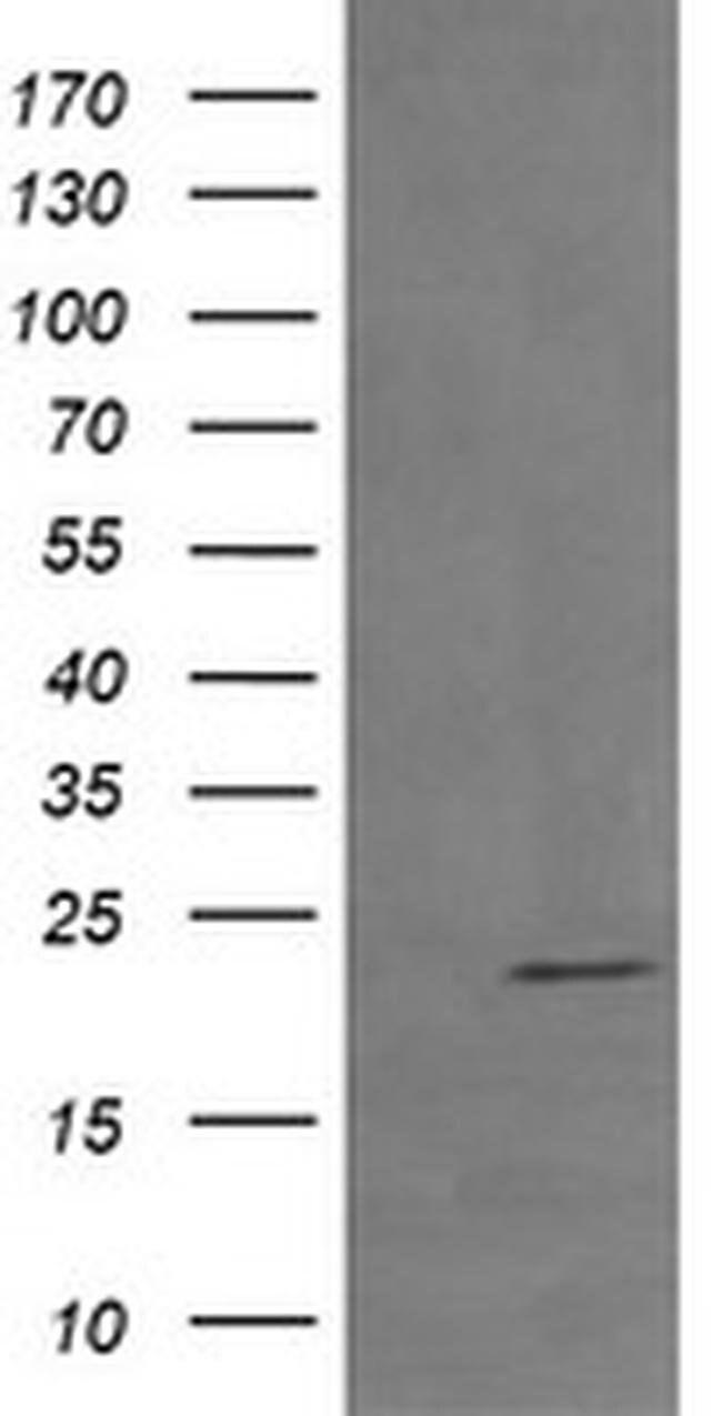 RHOJ Mouse anti-Human, Clone: OTI1C8, liquid, TrueMAB  100 µL; Unconjugated