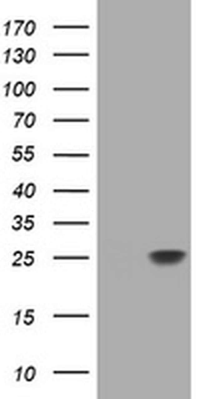 RHOJ Mouse anti-Human, Clone: OTI5F5, liquid, TrueMAB  100 µL; Unconjugated