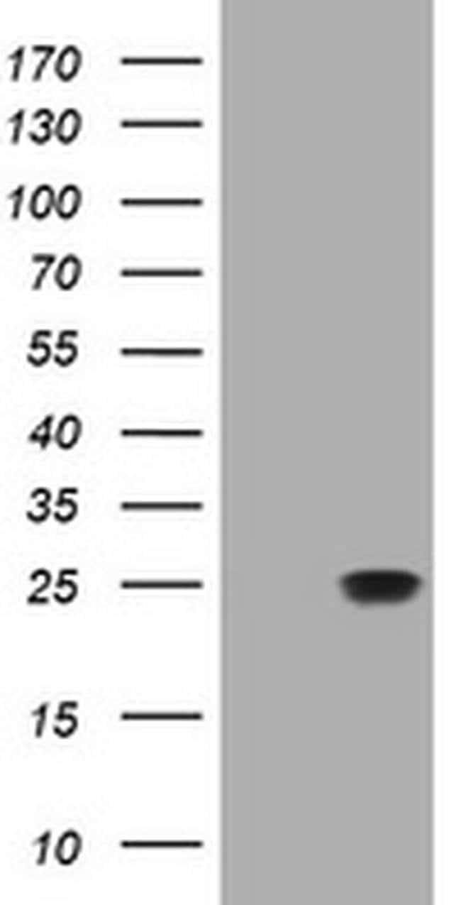 RHOJ Mouse anti-Human, Clone: OTI5C7, liquid, TrueMAB  100 µL; Unconjugated