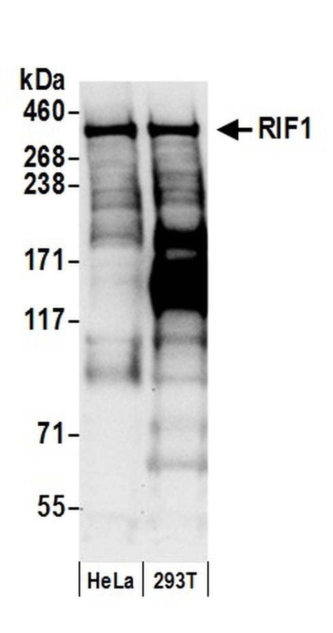 RIF1, Polyclonal, Bethyl Laboratories 100 μl; Unlabeled:Antibodies