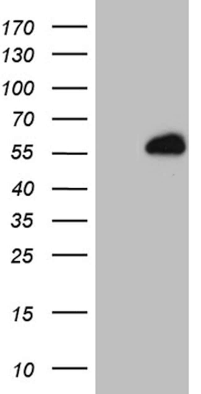 RING1 Mouse anti-Human, Clone: OTI6F11, lyophilized, TrueMAB  100 µg;