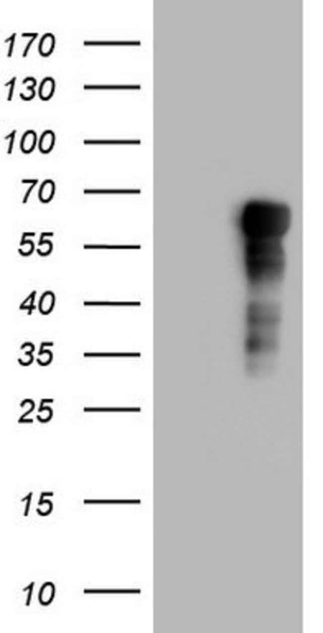 RIPK3 Mouse anti-Human, Clone: OTI3A3, lyophilized, TrueMAB  100 µg;
