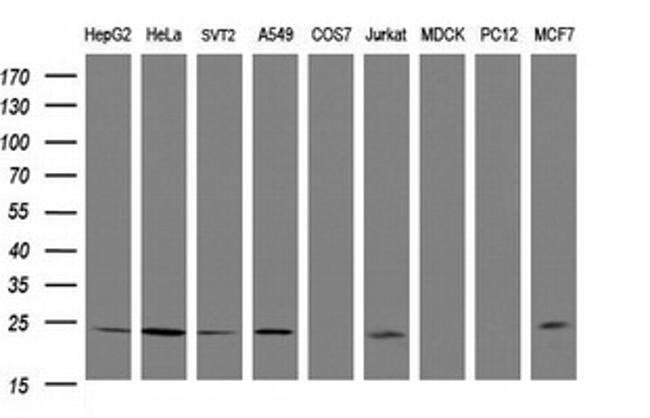 RIT2 Mouse anti-Human, Mouse, Clone: OTI4A6, liquid, TrueMAB  100 µL;