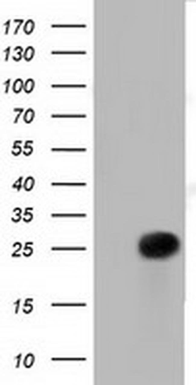 RIT2 Mouse anti-Human, Clone: OTI4B5, liquid, TrueMAB  100 µL; Unconjugated