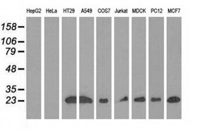 RIT2 Mouse anti-Canine, Human, Rat, Clone: OTI3F4, liquid, TrueMAB  100