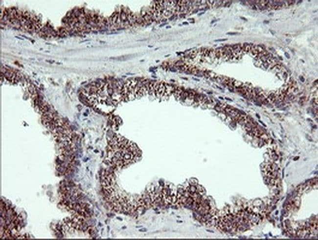 RLBP1 Mouse anti-Human, Clone: OTI1G6, liquid, TrueMAB  100 µL; Unconjugated