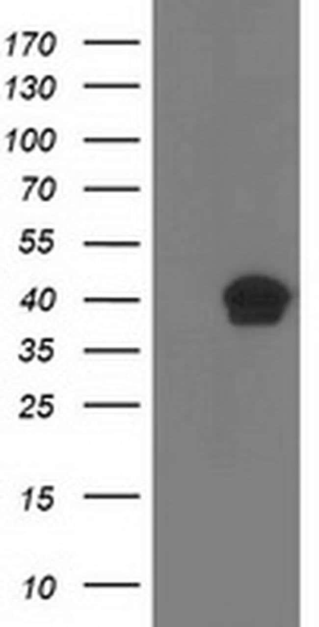 RLBP1 Mouse anti-Human, Clone: OTI5G2, liquid, TrueMAB  100 µL; Unconjugated