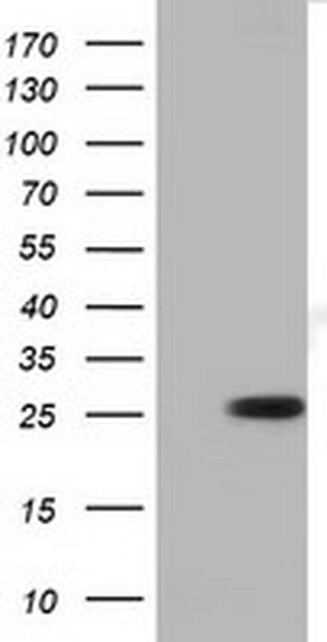 RND1 Mouse anti-Human, Clone: OTI1C3, liquid, TrueMAB  100 µL; Unconjugated