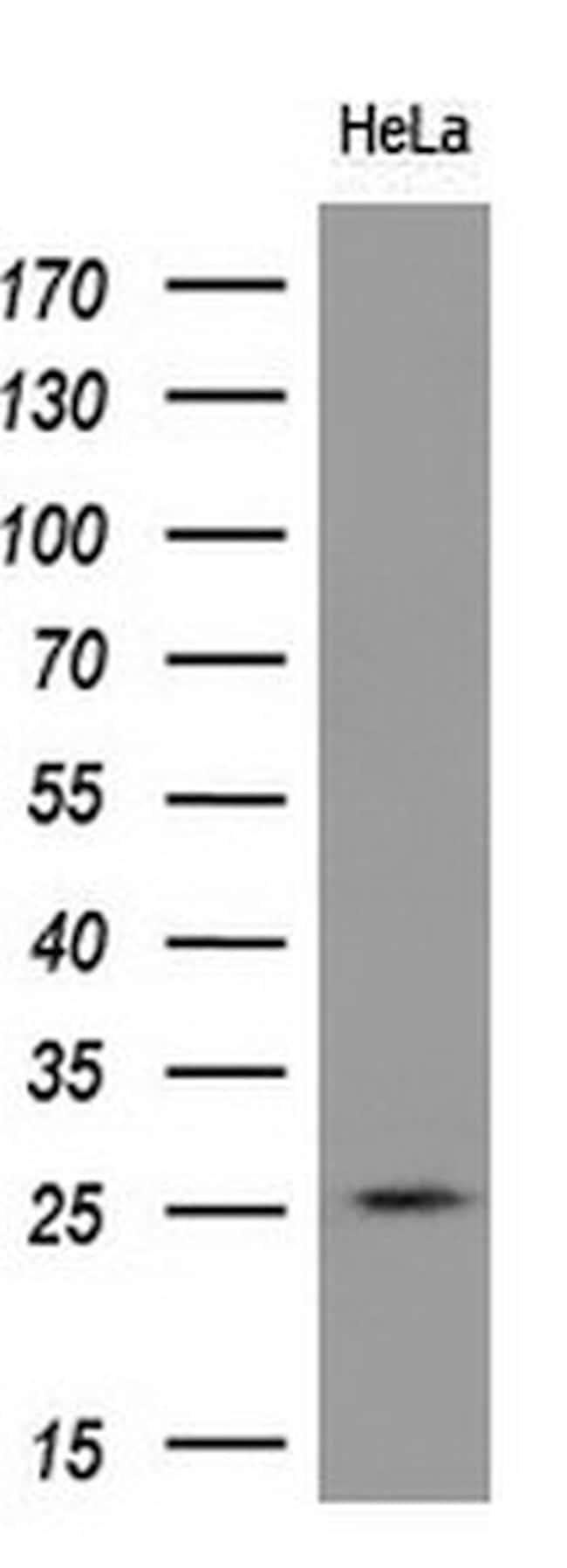 RND1 Mouse anti-Human, Clone: OTI4F12, liquid, TrueMAB  100 µL; Unconjugated