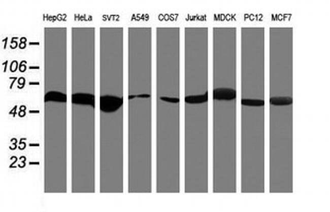 RNF113B Mouse anti-Human, Clone: OTI2C10, liquid, TrueMAB  100 µL;