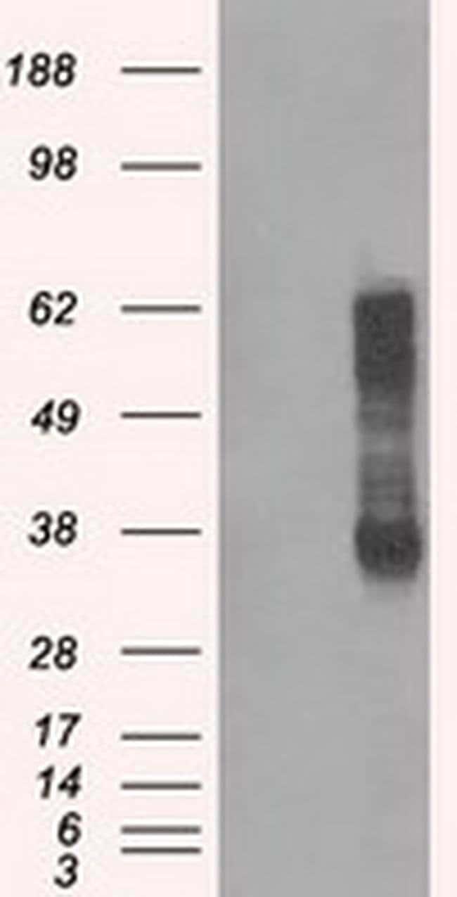 RNF144B Mouse anti-Human, Clone: OTI3D7, liquid, TrueMAB  100 µL;