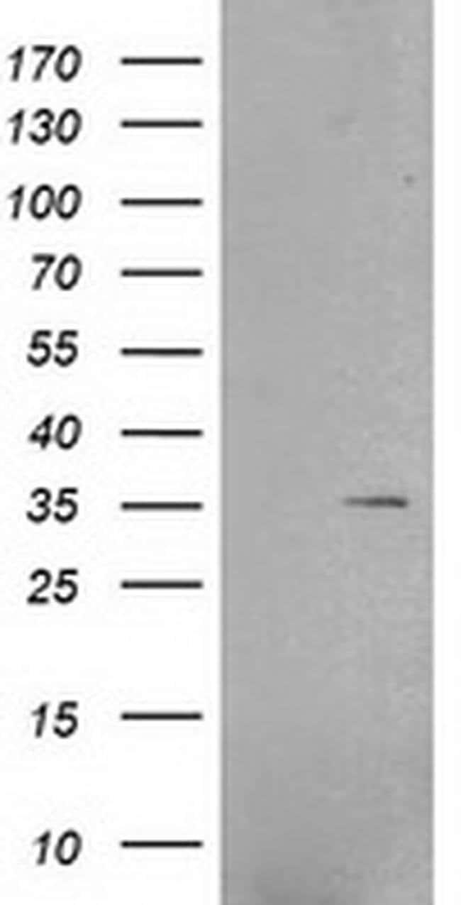 RNF144B Mouse anti-Human, Clone: OTI6B11, liquid, TrueMAB  100 µL;