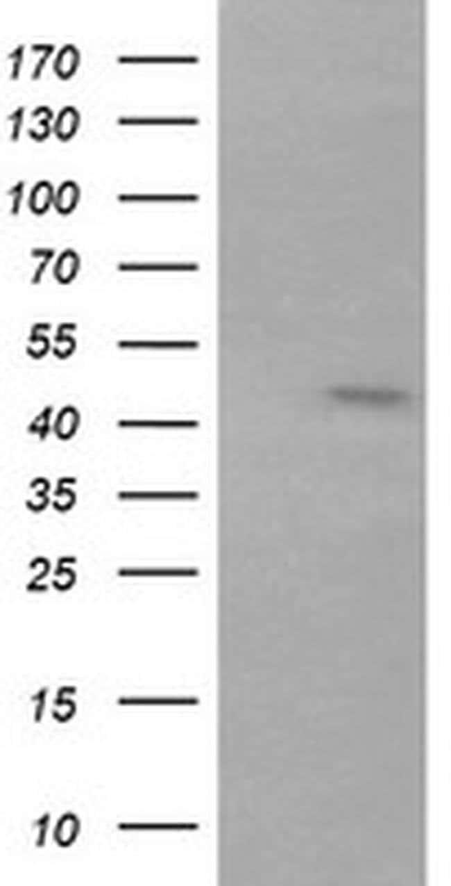 RNF39 Mouse anti-Human, Mouse, Clone: OTI5F5, liquid, TrueMAB  100 µL;