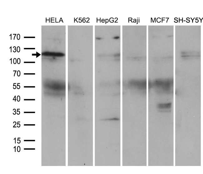 ROR2 Mouse anti-Human, Clone: OTI3H3, lyophilized, TrueMAB  100 µg;