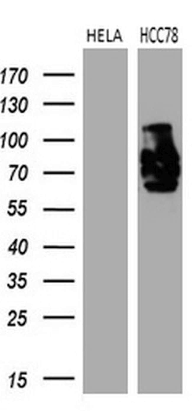 ROS1 Mouse anti-Human, Clone: OTI1E6, lyophilized, TrueMAB  100 µg;