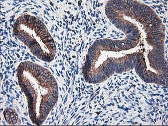 RPN1 Mouse anti-Human, Rat, Clone: OTI3E1, liquid, TrueMAB  30 µL;