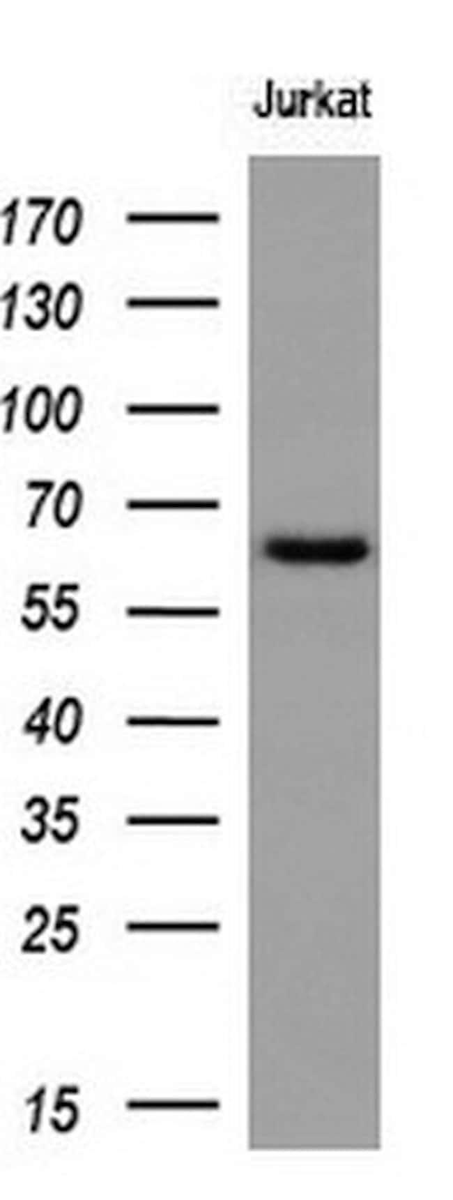 RPN1 Mouse anti-Human, Clone: OTI2G9, liquid, TrueMAB  100 µL; Unconjugated