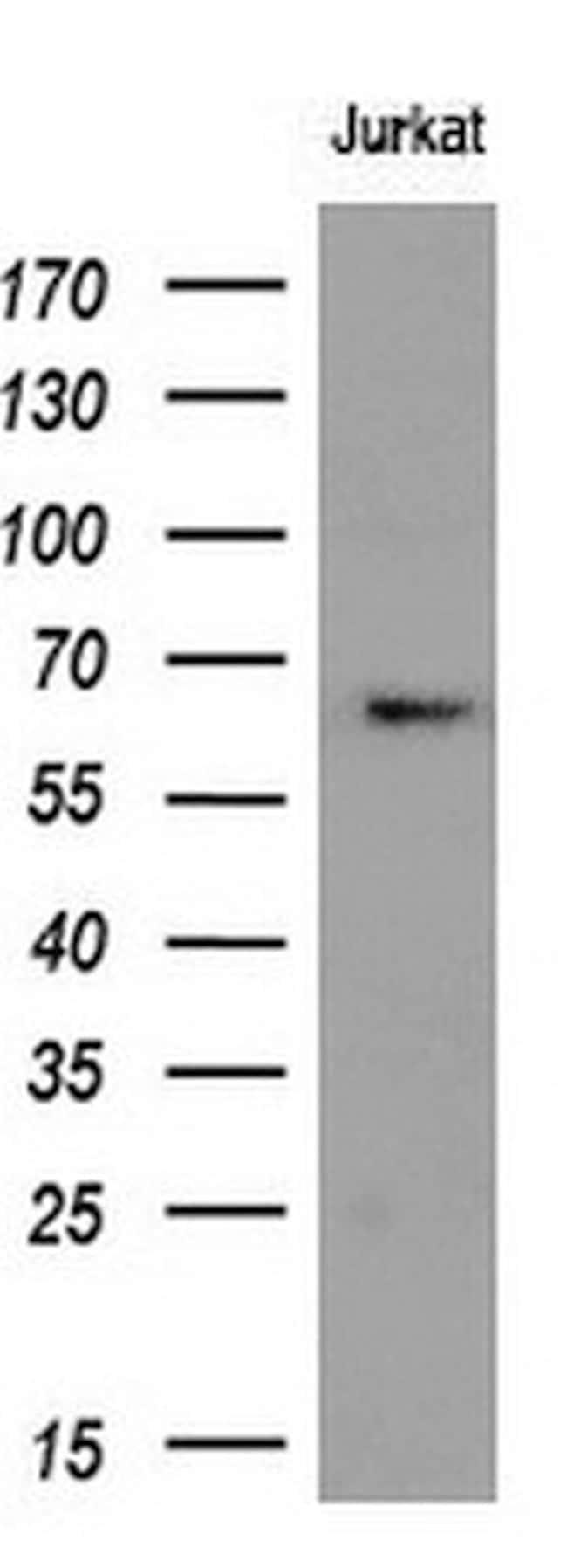 RPN1 Mouse anti-Human, Clone: OTI5B1, liquid, TrueMAB  100 µL; Unconjugated