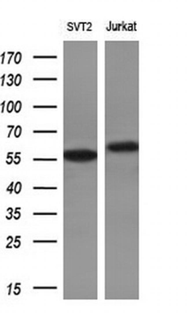 RPS6KB1 Mouse anti-Human, Clone: OTI4G4, liquid, TrueMAB  100 µL;