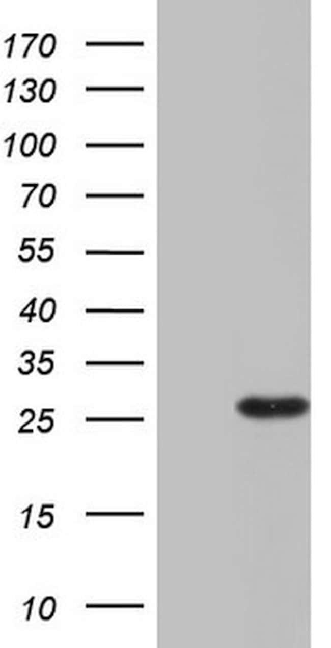 RSPO1 Mouse anti-Human, Clone: OTI1C3, lyophilized, TrueMAB  100 µg;
