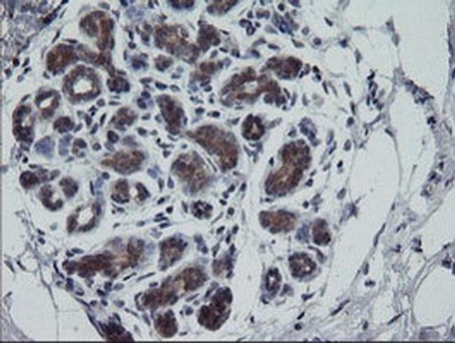 RTKN Mouse anti-Human, Clone: OTI1A4, liquid, TrueMAB  100 µL; Unconjugated