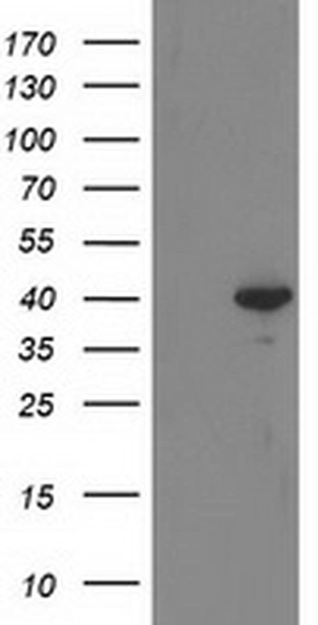 RTN4IP1 Mouse anti-Human, Clone: OTI3B2, liquid, TrueMAB  100 µL;
