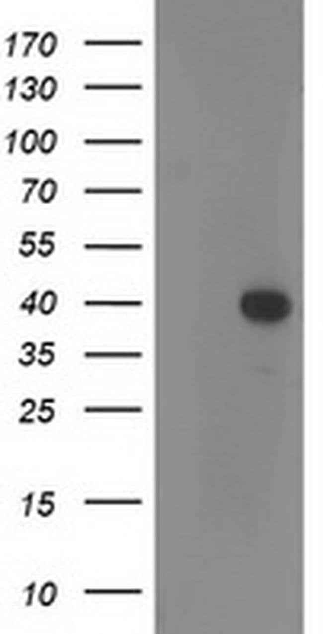 RTN4IP1 Mouse anti-Human, Clone: OTI2A9, liquid, TrueMAB  100 µL;