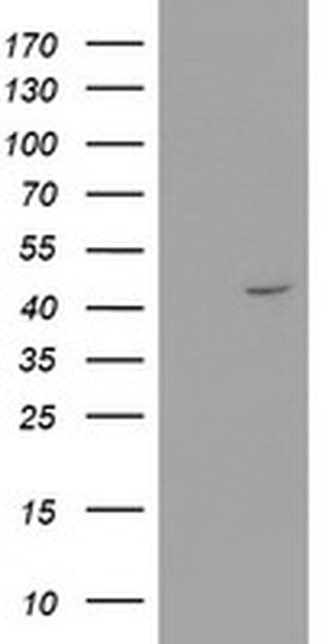 RTN4IP1 Mouse anti-Human, Clone: OTI1A8, liquid, TrueMAB  100 µL;