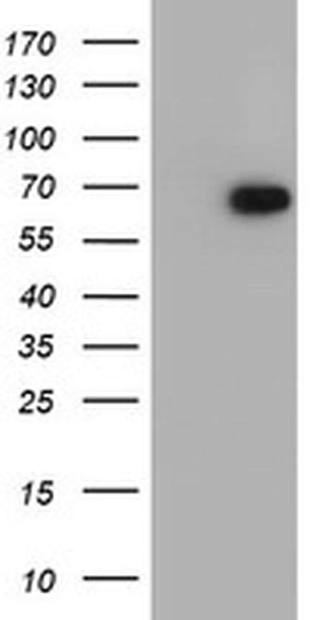 RUNX1T1 Mouse anti-Human, Clone: OTI1H1, liquid, TrueMAB  30 µL; Unconjugated