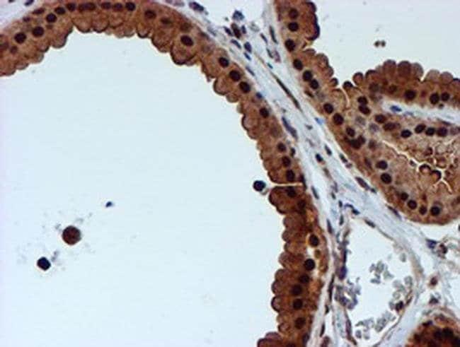 RUVBL2 Mouse anti-Human, Clone: OTI1H10, liquid, TrueMAB  100 µL;