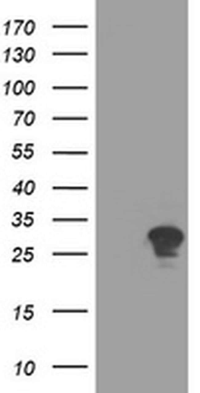RYBP Mouse anti-Human, Clone: OTI2D4, liquid, TrueMAB  100 µL; Unconjugated