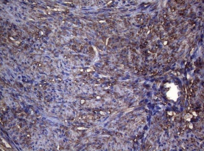 S100A9 Mouse anti-Human, Clone: OTI3F8, lyophilized, TrueMAB  100 µg;