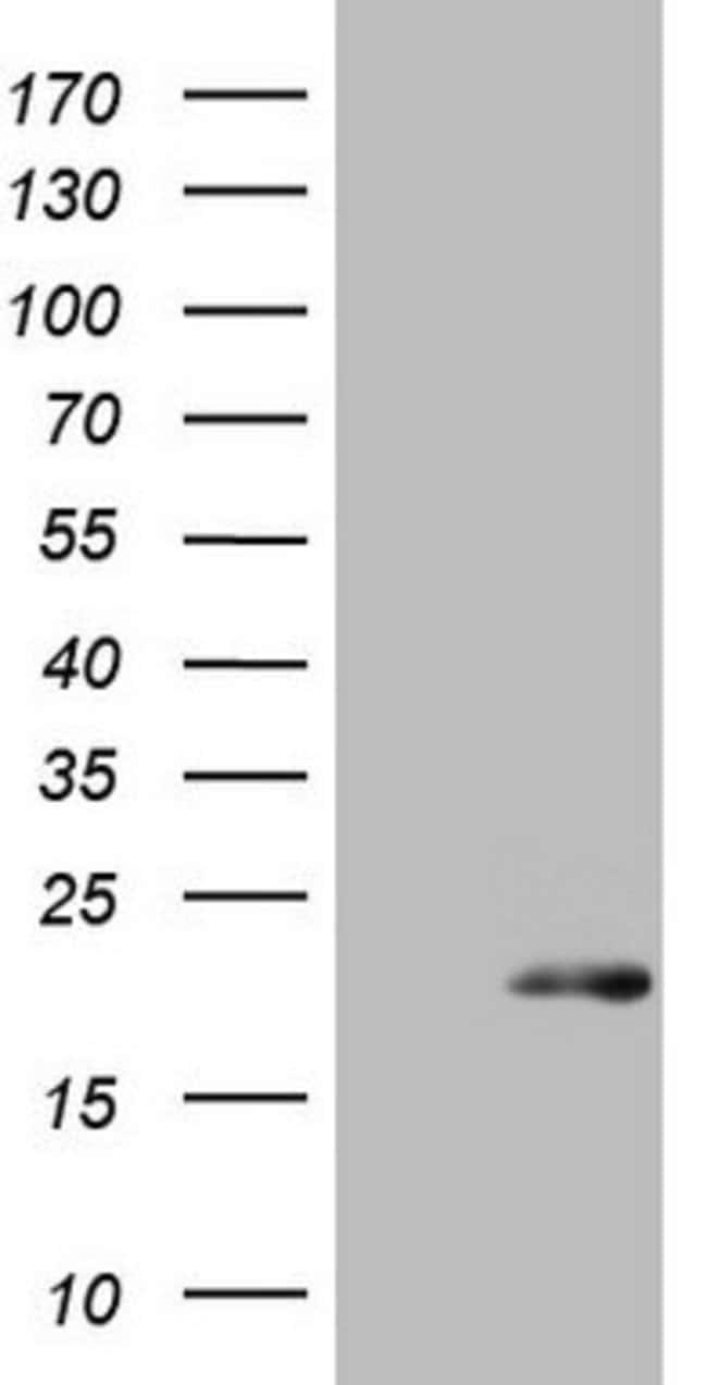 S100A9 Mouse anti-Human, Clone: OTI13E12, lyophilized, TrueMAB  100 µg;