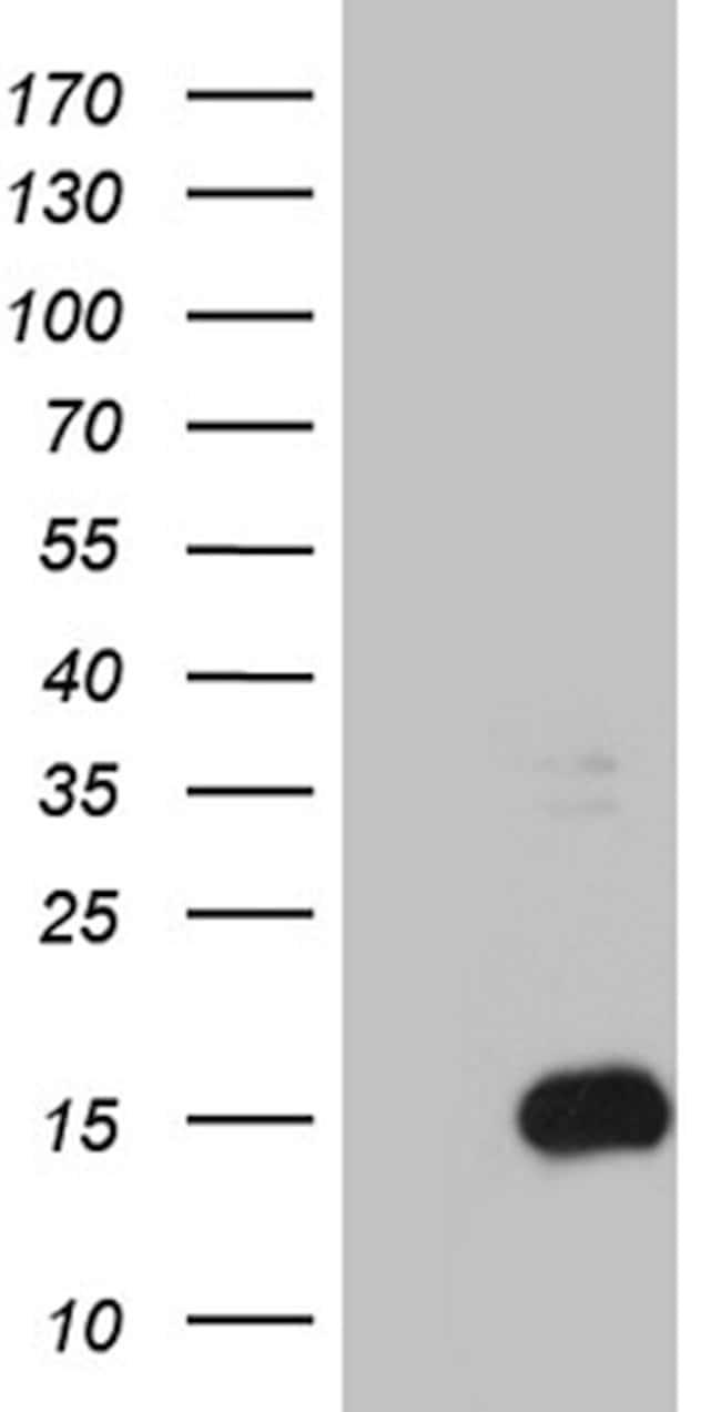 S100B Mouse anti-Human, Clone: OTI3G6, lyophilized, TrueMAB  100 µg;