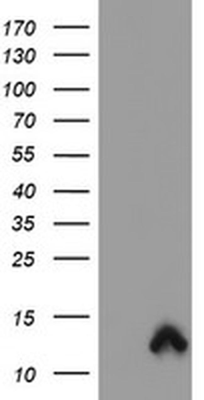 S100P Mouse anti-Human, Clone: OTI1F1, liquid, TrueMAB  100 µL; Unconjugated