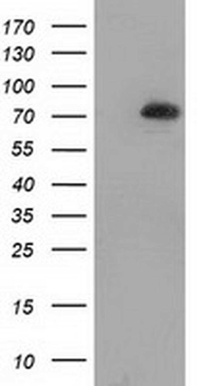 SAMHD1 Mouse anti-Human, Clone: OTI2B5, liquid, TrueMAB  100 µL; Unconjugated