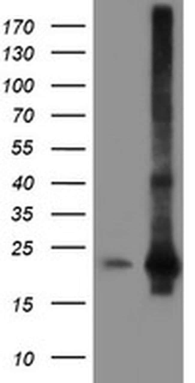 SAT2 Mouse anti-Human, Mouse, Clone: OTI2B3, liquid, TrueMAB  100 µL;