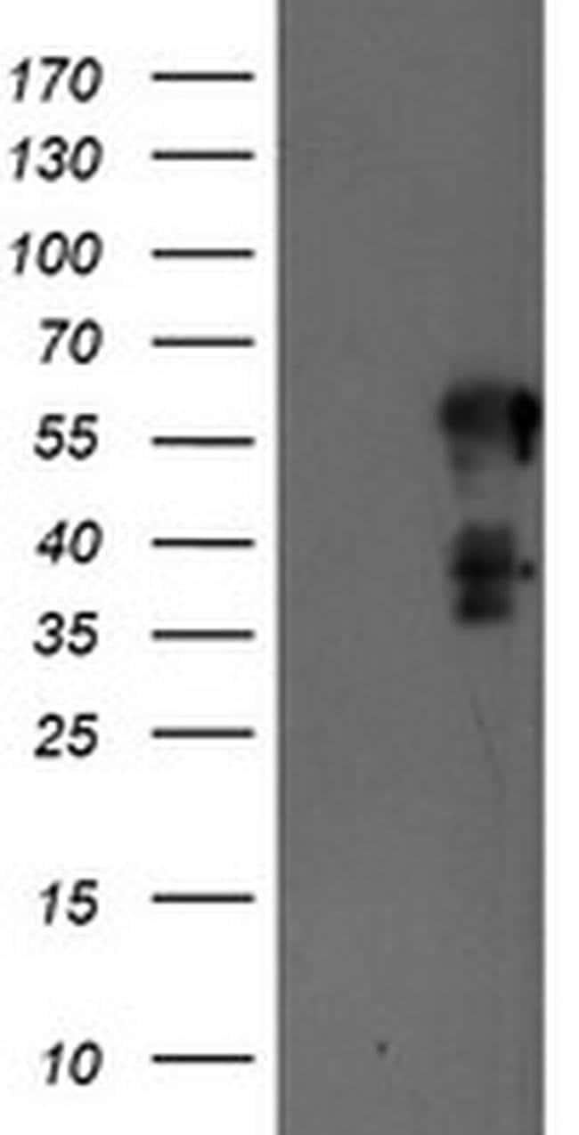 SCHIP1 Mouse anti-Human, Clone: OTI1A6, liquid, TrueMAB  100 µL; Unconjugated