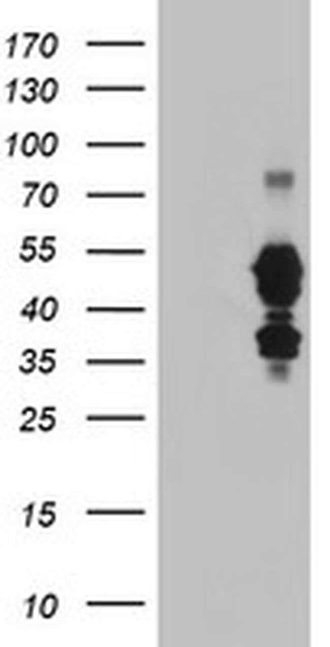 SCHIP1 Mouse anti-Human, Clone: OTI3A7, liquid, TrueMAB  100 µL; Unconjugated