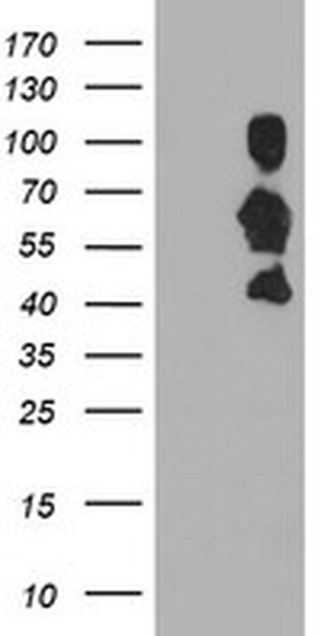 SCHIP1 Mouse anti-Human, Clone: OTI1G6, liquid, TrueMAB  100 µL; Unconjugated