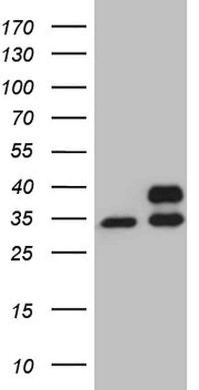 SDHB Mouse anti-Human, Clone: OTI1E4, lyophilized, TrueMAB  100 µg;