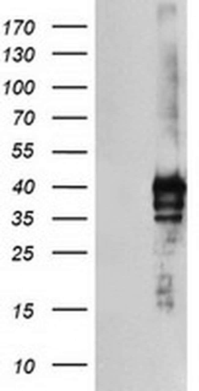 SDS Mouse anti-Human, Clone: OTI1F9, liquid, TrueMAB  100 µL; Unconjugated