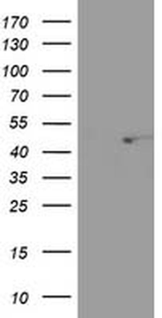SEC14L2 Mouse anti-Human, Clone: OTI1B1, liquid, TrueMAB  100 µL;
