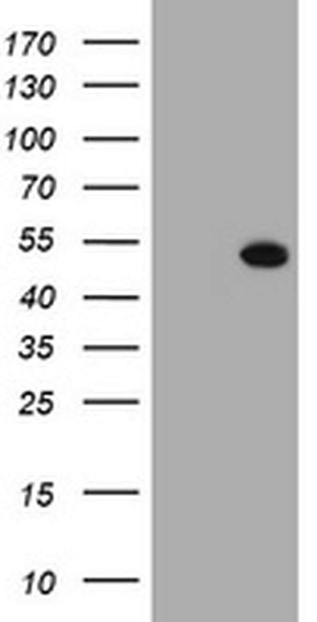 SELENBP1 Mouse anti-Human, Clone: OTI3D4, liquid, TrueMAB  100 µL;