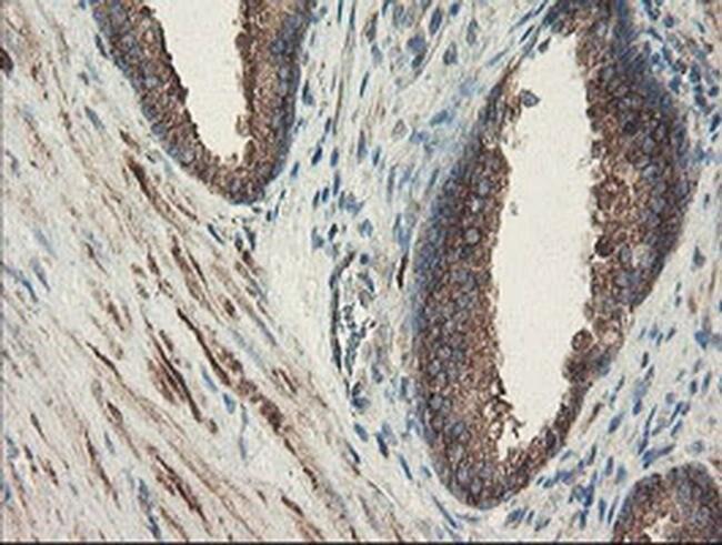 SENP2 Mouse anti-Human, Clone: OTI1B8, liquid, TrueMAB  100 µL; Unconjugated