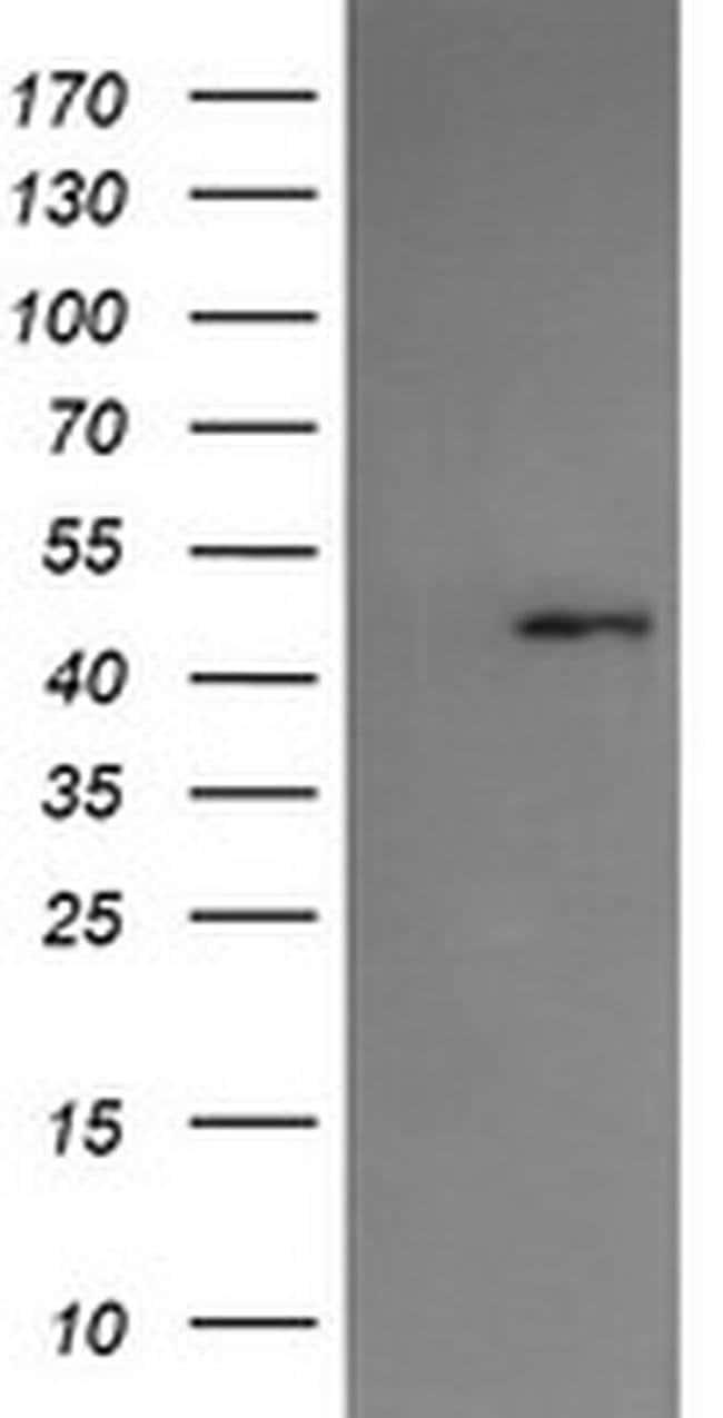 SERPINA5 Mouse anti-Human, Clone: OTI1C4, liquid, TrueMAB  100 µL;