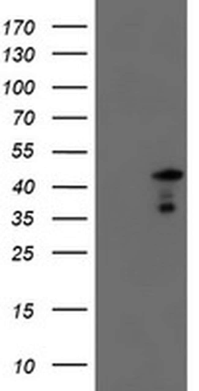 SERPINA5 Mouse anti-Human, Clone: OTI2D10, liquid, TrueMAB  100 µL;